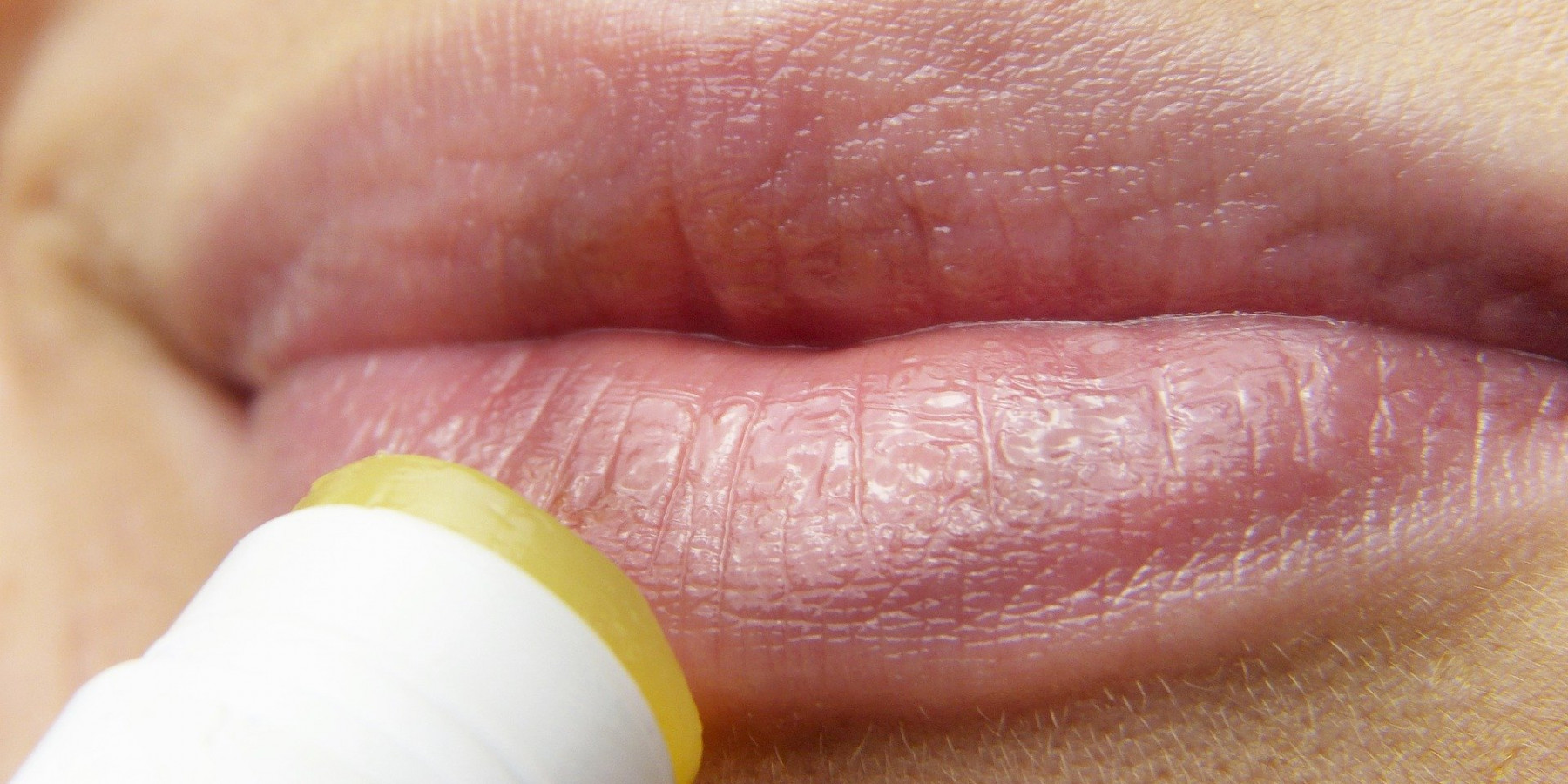 Herpes: Sonne und Stress begünstigen Lippenbläschen